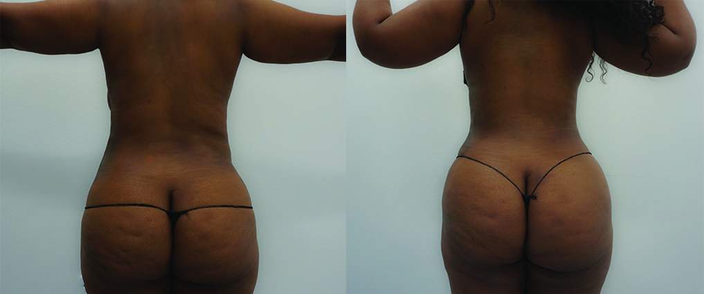 before and after woman hip roll liposuction
