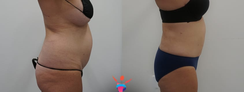 360 Liposuction Before & After