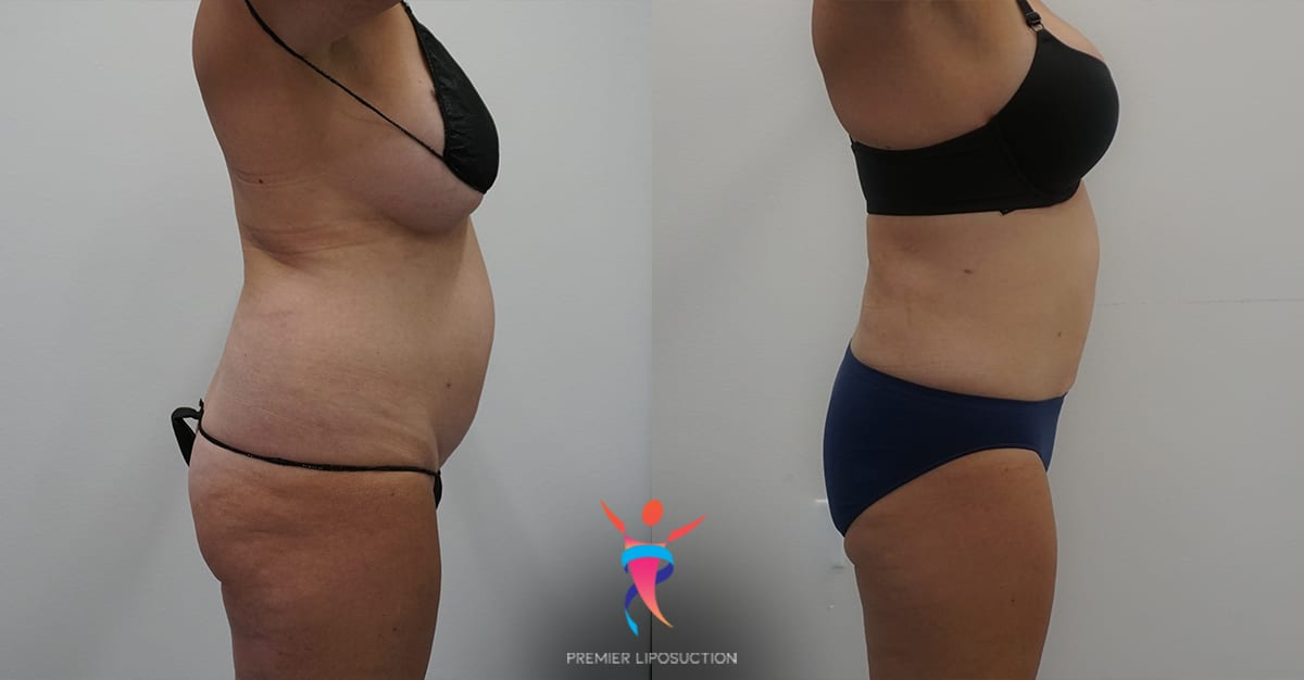 360 Liposuction before and after
