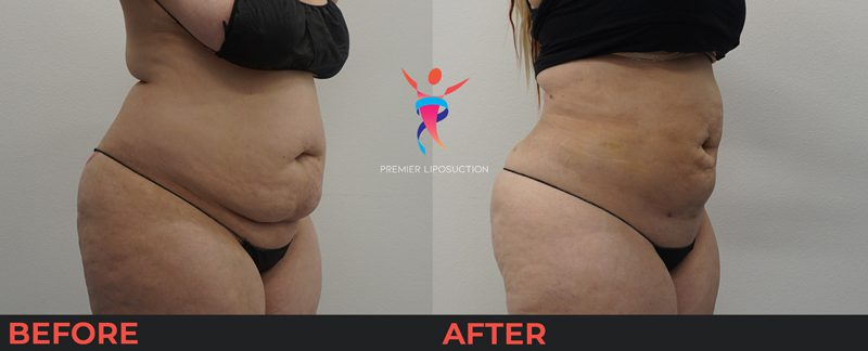 before and after image of woman with stomach liposuction