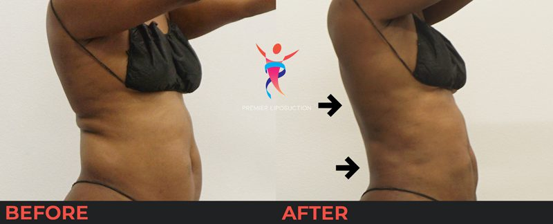 upper back before and after liposuction